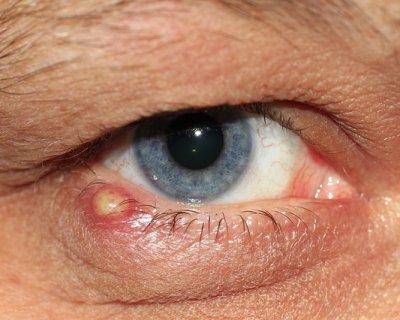 Orzaiolo, cause sintomi e classificazione di una patologia dell'occhio