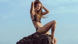 10 miti da sfatare sulla cellulite
