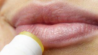 Labbra screpolate, che fare?
