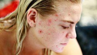 Micro Needling contro acne, rughe e smagliature