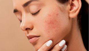 Acne: cause e sintomi