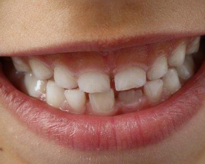 Apparecchio dentale nei bambini