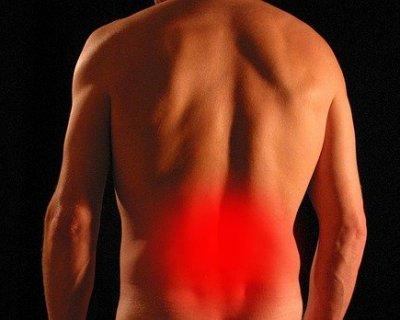 Mal di schiena, le cause più comuni